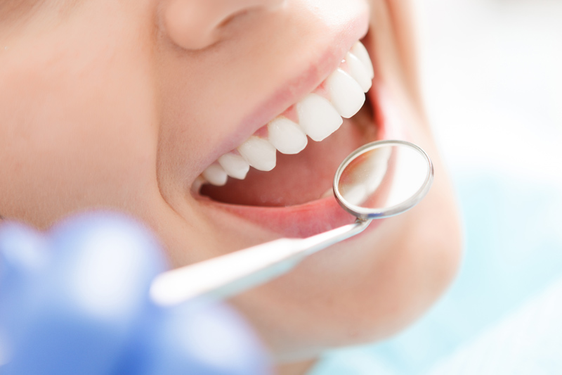 Dentistica-wybielanie